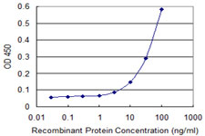 Detection limit for recombinant GST tagged IRF5 is 1 ng/ml as a capture antibody.