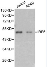 Western blot of IRF5 pAb in extracts from Jurkat and A549 cells.