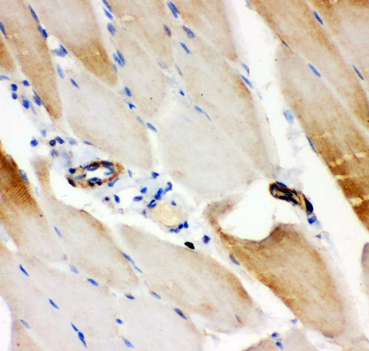 IRS1 antibody IHC-paraffin: Rat Skeletal Muscle Tissue.