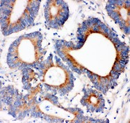 IRS1 antibody IHC-paraffin: Human Intestinal Cancer Tissue.