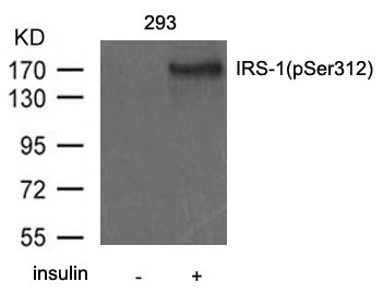 Western blot of extract from 293 cells untreated or treated with insulin using IRS-1(Phospho-Ser312) antibody.