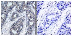 IHC of paraffin-embedded human breast carcinoma, using IRS-1 (Phospho-Ser636) Antibody. The picture on the right is treated with the synthesized peptide.