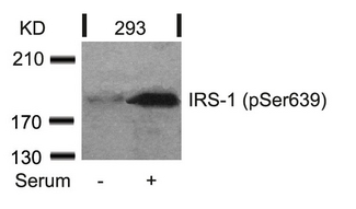 Western blot of extracts from 293 cells untreated or treated with serum using IRS-1(Phospho-Ser639) antibody.