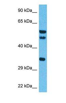 ISY1 Antibody - Western blot of ISY1 Antibody with human Thymus Tumor lysate.  This image was taken for the unconjugated form of this product. Other forms have not been tested.