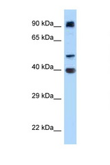 ITFG2 antibody Western blot of HT1080 Cell lysate. Antibody concentration 1 ug/ml.  This image was taken for the unconjugated form of this product. Other forms have not been tested.