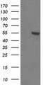 HEK293T cells were transfected with the pCMV6-ENTRY control (Left lane) or pCMV6-ENTRY ITFG2 (Right lane) cDNA for 48 hrs and lysed. Equivalent amounts of cell lysates (5 ug per lane) were separated by SDS-PAGE and immunoblotted with anti-ITFG2.