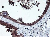 IHC of paraffin-embedded Human breast tissue using anti-ITFG2 mouse monoclonal antibody.