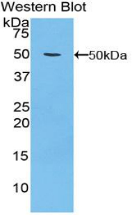 ITGA5/Integrin Alpha 5/CD49e Antibody - Western blot of recombinant ITGA5/Integrin Alpha 5/CD49e.  This image was taken for the unconjugated form of this product. Other forms have not been tested.