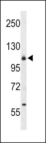 Western blot of CD49f Antibody in 293 cell line lysates (35 ug/lane). CD49f (arrow) was detected using the purified antibody.