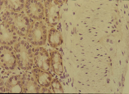 IHC: Rat anti-Mouse Integrin alpha6 (INTEGRIN A6, RT X MS-100UG) staining of mouse gut.