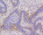 Immunohistochemistry of paraffin-embedded human colon carcinoma using ITGA6 antibodyat dilution of 1:100 (40x lens).