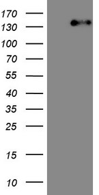 ITGAM / CD11b Antibody - HEK293T cells were transfected with the pCMV6-ENTRY control. (Left lane) or pCMV6-ENTRY ITGAM. (Right lane) cDNA for 48 hrs and lysed