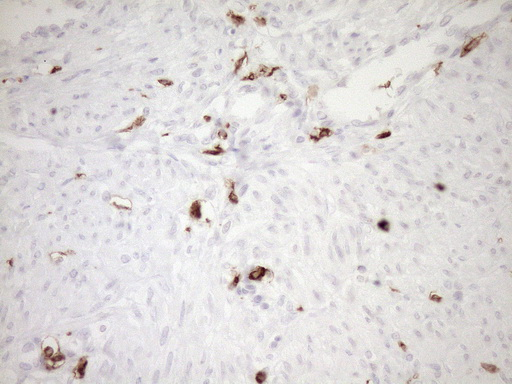 ITGAM / CD11b Antibody - Immunohistochemical staining of paraffin-embedded Human endometrium tissue within the normal limits using anti-ITGAM mouse monoclonal antibody. (Heat-induced epitope retrieval by 1mM EDTA in 10mM Tris buffer. (pH8.5) at 120°C for 3 min. (1:150)
