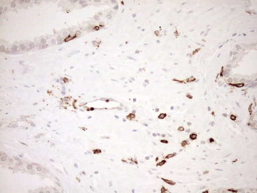 ITGAM / CD11b Antibody - Immunohistochemical staining of paraffin-embedded Carcinoma of Human prostate tissue using anti-ITGAM mouse monoclonal antibody. (Heat-induced epitope retrieval by 1mM EDTA in 10mM Tris buffer. (pH8.5) at 120°C for 3 min. (1:150)