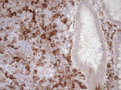 ITGAM / CD11b Antibody - Immunohistochemical staining of paraffin-embedded Human colon tissue within the normal limits using anti-ITGAM mouse monoclonal antibody. (Heat-induced epitope retrieval by 1mM EDTA in 10mM Tris buffer. (pH8.5) at 120°C for 3 min. (1:150)