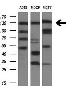 ITGAM / CD11b Antibody - Western blot analysis of extracts. (10ug) from 3 different cell lines by using anti-ITGAM monoclonal antibody. (1:200)