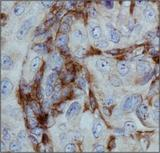 ITGAM / CD11b Antibody - CD11b Antibody - Microglia Marker - IHC of CD11b in human renal cancer using DAB with hematoxylin counterstain.  This image was taken for the unconjugated form of this product. Other forms have not been tested.