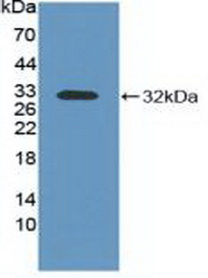 Western Blot; Sample: Recombinant ITGaV, Mouse.