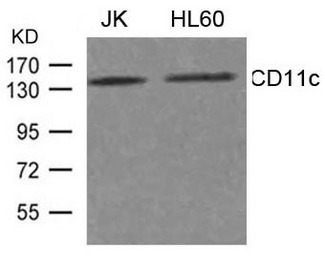 Western blot of extract from JK, HL-60 cells using CD11c antibody