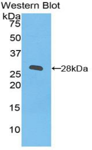 ITGB2 / CD18 Antibody - Western blot of recombinant ITGB2 / MAC-1 / CD18.  This image was taken for the unconjugated form of this product. Other forms have not been tested.