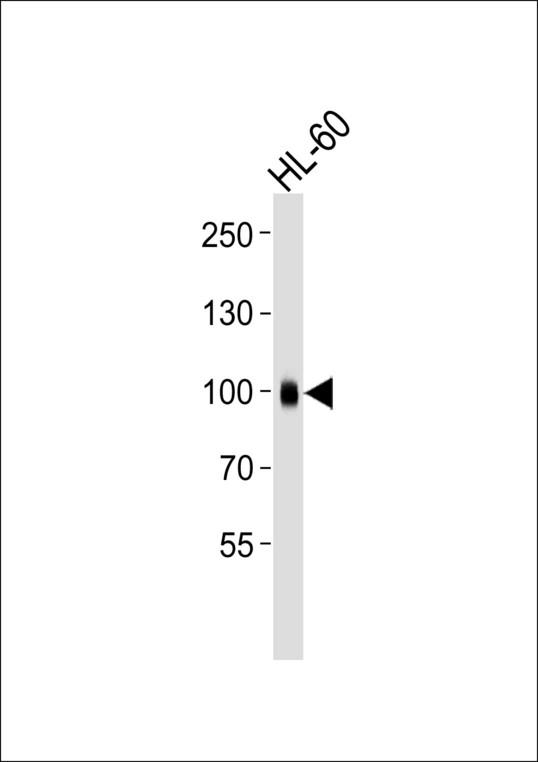Western blot of lysate from HL-60 cell line, using ITGB2 Antibody. Antibody was diluted at 1:1000. A goat anti-mouse IgG H&L (HRP) at 1:3000 dilution was used as the secondary antibody. Lysate at 35ug.