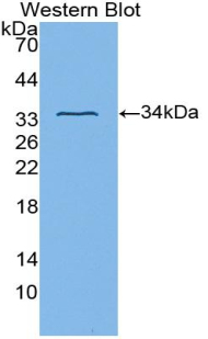 Western blot of recombinant ITGB3 / Integrin Beta 3 / CD61.  This image was taken for the unconjugated form of this product. Other forms have not been tested.
