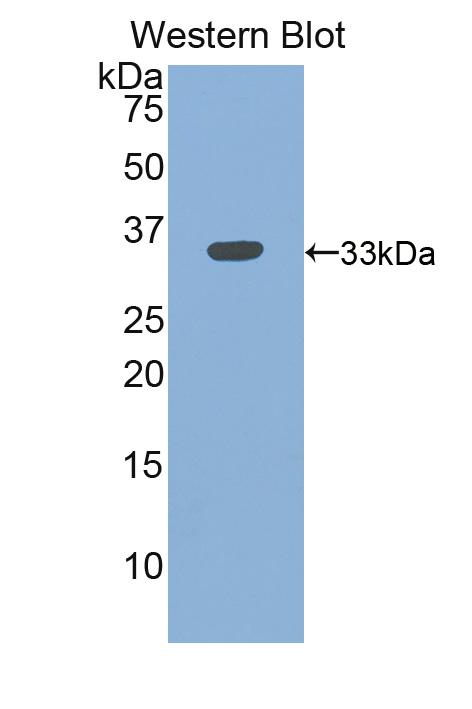 Western blot of ITGB3 / Integrin Beta 3 / CD61 antibody.