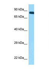 ITGB3 / CD61 antibody Western blot of Placenta lysate. Antibody concentration 1 ug/ml.  This image was taken for the unconjugated form of this product. Other forms have not been tested.