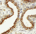 ITGB3 / Integrin Beta 3 / CD61 antibody. IHC(P): Human Breast Cancer Tissue.