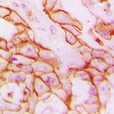 Immunohistochemical analysis of CD61 staining in human breast cancer formalin fixed paraffin embedded tissue section. The section was pre-treated using heat mediated antigen retrieval with sodium citrate buffer (pH 6.0). The section was then incubated with the antibody at room temperature and detected using an HRP conjugated compact polymer system. DAB was used as the chromogen. The section was then counterstained with hematoxylin and mounted with DPX.