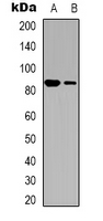 Western blot analysis of CD61 expression in HUVEC (A); NIH3T3 (B) whole cell lysates.