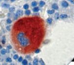 IHC of CD61 on FFPE Bone Marrow tissue. This image was taken for the unmodified form of this product. Other forms have not been tested.