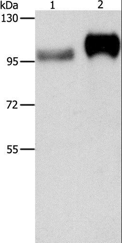 Western blot analysis of Huvec cell and human placenta tissue, using ITGB3 Polyclonal Antibody at dilution of 1:500.