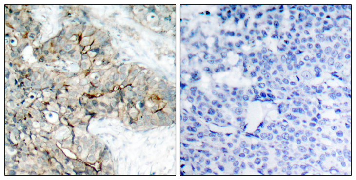 Immunohistochemistry analysis of paraffin-embedded human breast carcinoma, using Integrin beta3 (Phospho-Tyr773) Antibody. The picture on the right is blocked with the phospho peptide.