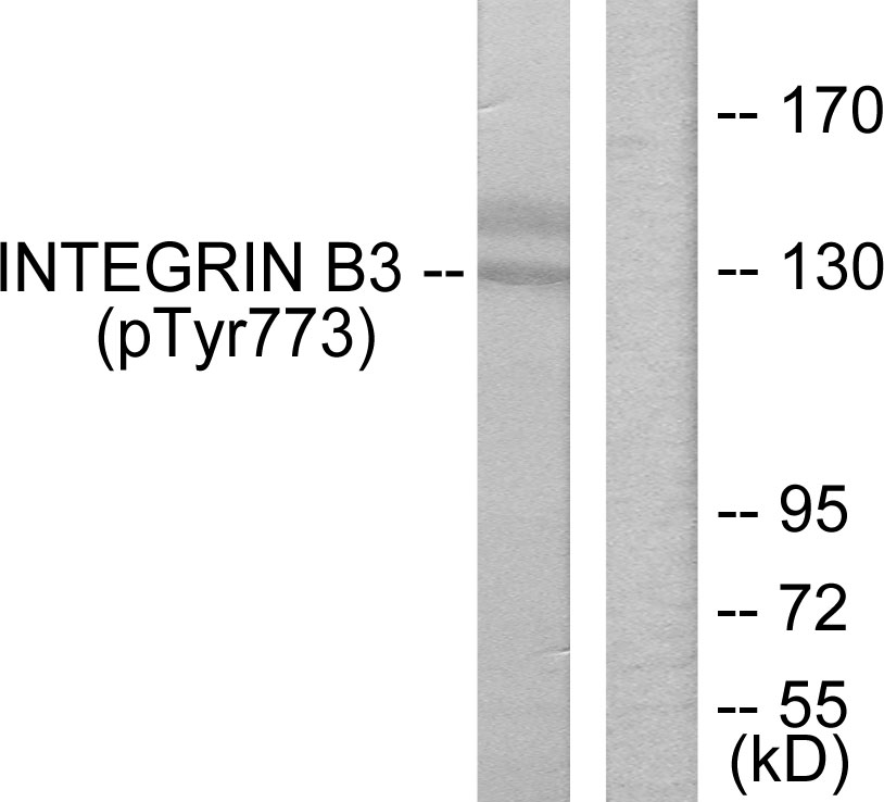 Western blot analysis of lysates from HL-60 cells treated with H2O2, using Integrin beta3 (Phospho-Tyr773) Antibody. The lane on the right is blocked with the phospho peptide.