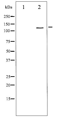 Western blot of Integrin beta3 phosphorylation expression in H2O2 treated 293 whole cell lysates,The lane on the left is treated with the antigen-specific peptide.