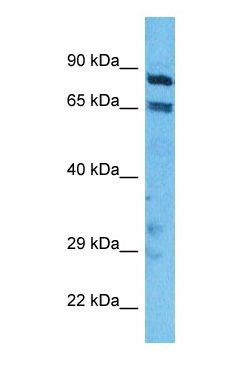 Western blot of ITB5 Antibody with human A549 Whole Cell lysate.  This image was taken for the unconjugated form of this product. Other forms have not been tested.
