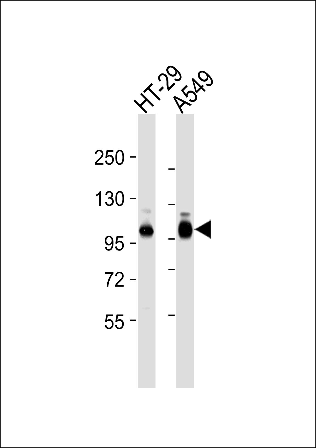 All lanes : Anti-Integrin beta 5 Antibody at 1:1000 dilution Lane 1: HT-29 whole cell lysates Lane 2: A549 whole cell lysates Lysates/proteins at 20 ug per lane. Secondary Goat Anti-Rabbit IgG, (H+L),Peroxidase conjugated at 1/10000 dilution Predicted band size : 88 kDa Blocking/Dilution buffer: 5% NFDM/TBST.