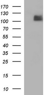 HEK293T cells were transfected with the pCMV6-ENTRY control (Left lane) or pCMV6-ENTRY ITGB6 (Right lane) cDNA for 48 hrs and lysed. Equivalent amounts of cell lysates (5 ug per lane) were separated by SDS-PAGE and immunoblotted with anti-ITGB6.