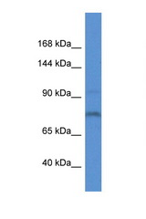 ITIH1 antibody Western blot of Mouse Liver lysate. Antibody concentration 1 ug/ml. This image was taken for the unconjugated form of this product. Other forms have not been tested.