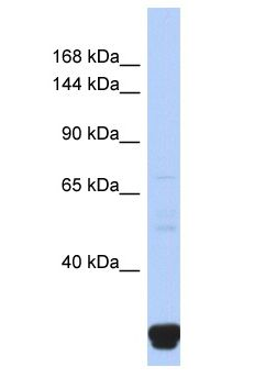 ITPR2 / IP3 Receptor antibody Western Blot of Fetal Small Intestine. Antibody dilution: 1 ug/ml.  This image was taken for the unconjugated form of this product. Other forms have not been tested.