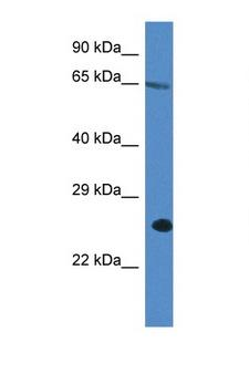 ITPRIP Antibody - ITPRIP antibody Western blot of A549 Cell lysate. Antibody concentration 1 ug/ml.  This image was taken for the unconjugated form of this product. Other forms have not been tested.