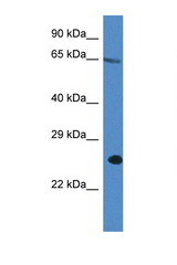 ITPRIP antibody Western blot of A549 Cell lysate. Antibody concentration 1 ug/ml.  This image was taken for the unconjugated form of this product. Other forms have not been tested.