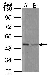 Sample (30 ug of whole cell lysate). A: Hela, B: JurKat. 10% SDS PAGE. IVD antibody diluted at 1:1000.
