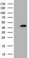 HEK293T cells were transfected with the pCMV6-ENTRY control (Left lane) or pCMV6-ENTRY IVD (Right lane) cDNA for 48 hrs and lysed. Equivalent amounts of cell lysates (5 ug per lane) were separated by SDS-PAGE and immunoblotted with anti-IVD.