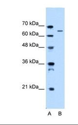 Lane A: Marker. Lane B: HepG2 cell lysate. Antibody concentration: 0.5 ug/ml. Gel concentration: 12%.  This image was taken for the unconjugated form of this product. Other forms have not been tested.