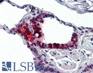 Anti-IVL / Involucrin antibody IHC of human lung. Immunohistochemistry of formalin-fixed, paraffin-embedded tissue after heat-induced antigen retrieval. Antibody LS-B3058 concentration 10 ug/ml.