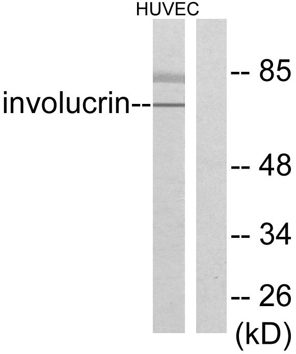 Western blot analysis of lysates from HUVEC cells, using Involucrin Antibody. The lane on the right is blocked with the synthesized peptide.