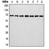 Western blot analysis of Involucrin expression in MCF7 (A); A375 (B); A431 (C); NIH3T3 (D); HT1080 (E); mouse brain (F); rat brain (G) whole cell lysates.
