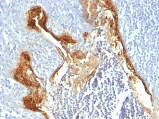 Formalin-fixed, paraffin-embedded human tonsil stained with Involucrin antibody (IVRN/827).  This image was taken for the unmodified form of this product. Other forms have not been tested.